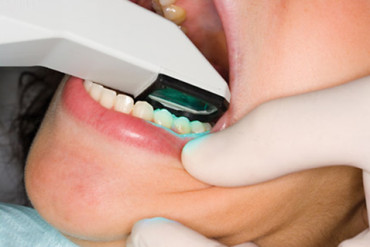 Orthodontist office uses 3D technology for increased patient comfort, accuracy