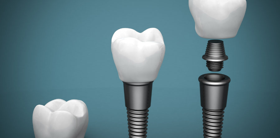 Fight Infection with New Dental Implants